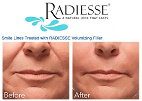 radiesse treatment